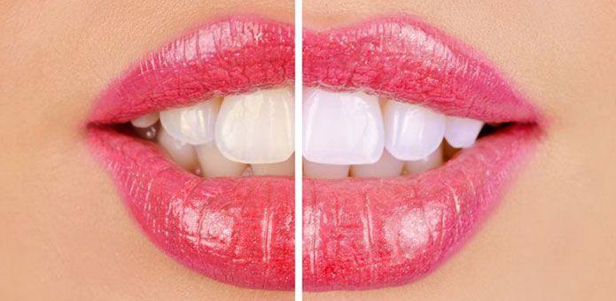 Blanqueamiento dental y eliminación del sarro