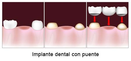 Implante dental con puente