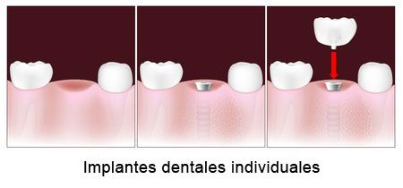 Implantes dentales individuales