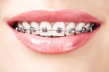 Ortopedia dental con brackets