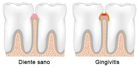 Periodoncia: diente sano y gingivitis