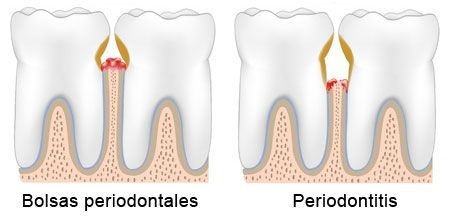 Periodoncia: bolsas periodontales y periodontitis