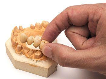 Prótesis dentales puentes y fundas