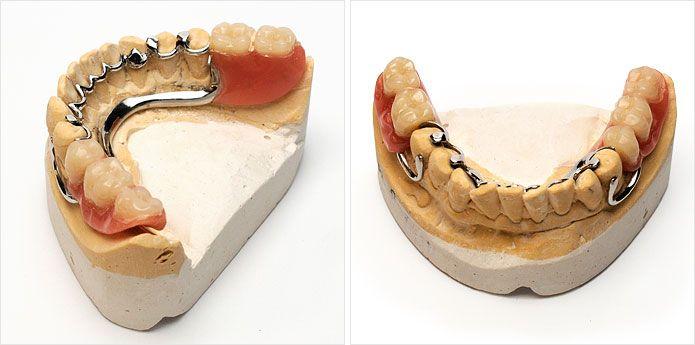 Prótesis dentales a medida