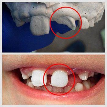 Rehabilitación y estética dental y funcional