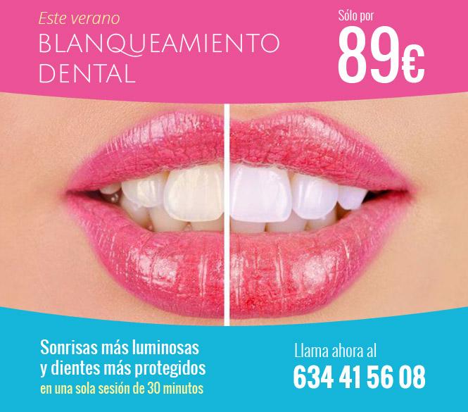 Promoción veraniega: blanqueamiento dental por 89 €